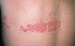 Опоясывающий лишай: причины возникновения, способы лечения, мази