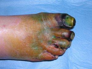 Гангрена пальцев ноги