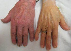 Дефицит железа (справа)