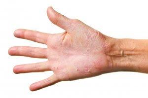 Потрескалась кожа на руках