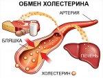 Как быстро снизить холестерин в домашних условиях: профилактика атеросклероза