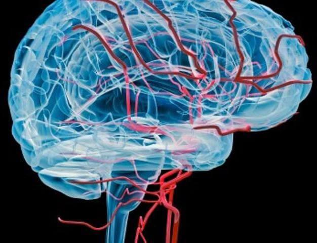 Проблемы в головном мозге