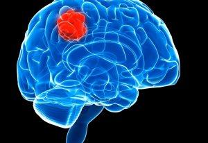 Признаки глиальной опухоли в головном мозге