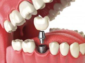 Положительные отзывы о зубном имплантанте
