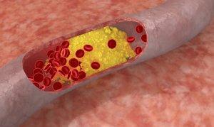 Происхождение атеросклероза брахиоцефальных сосудов