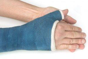 Фиксирующий бандаж при травме руки