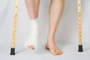 Нарушение целостности костей в области голеностопа