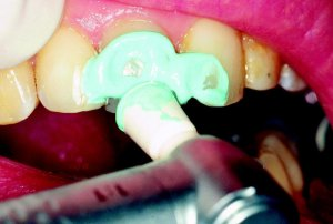 Неприятные ощущения и повышенная чувствительность  зубов
