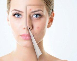 Крем от геморроя от синяков и гематом на лице