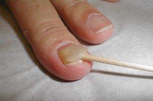 Противогрибковые препараты для лечения ногтей