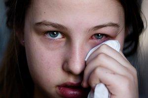 Аденовирусное поражение глаз при ослаблении иммунитета