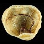 Дермоидная киста яичника и беременность: лечение и диагностика
