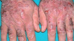 Причины обострения псориаза на руках