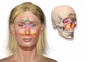 Гнойные выделения из носа при гайморите