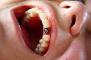 Дискомфорт из-за отсутствия зуба