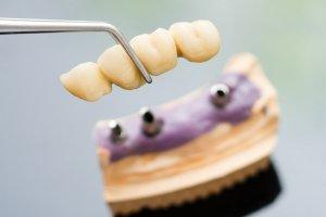 Мостовидные протезы для восстановления зубной конструкции