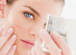 Мазь от лицевых дефектов