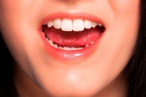Детские зубы мешают росту постоянных