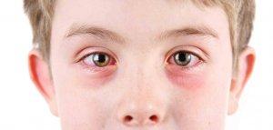 Детский дерматит глаз