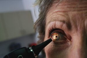 Медикаментозная терапия при пигментной глаукоме