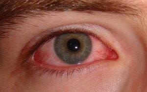 Аденовирус слизистой глаз