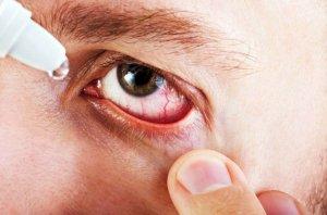 Глазные лечебные капли при конъюктивите