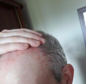 Себорейные бляшки на коже головы у взрослых