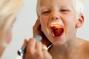 Антисептики при сильной боли в горле