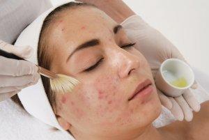 Очищение пор кожи с помощью масок