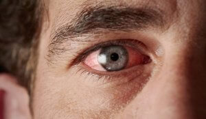 Причины воспаления конъюктивы