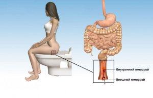 Продолжительность симптомов при геморрое