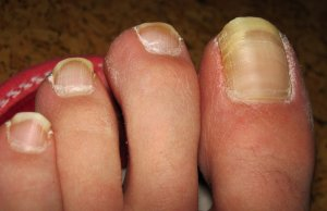 Признаки появления грибка на ногтях