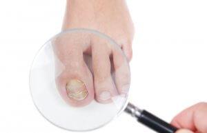 Наружные средства в борьбе с грибком на ногтях