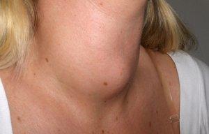 Прием препарата для щитовидки