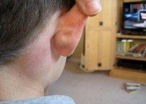 Воспаление лимфатических узлов в области шеи
