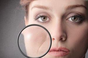 Причина появления морщин в области носогубных складок