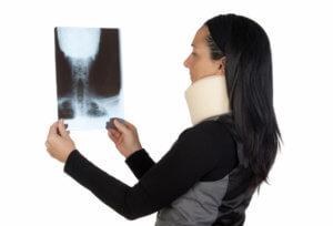 Рентгенография шейного отдела