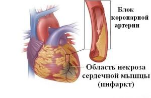 Атеросклероз – главная причина инфарктов