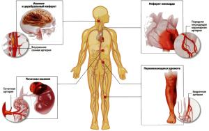 Влияние атеросклероза на различные системы организма