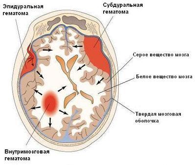 Гематома мозга. Виды гематом и методы их лечения