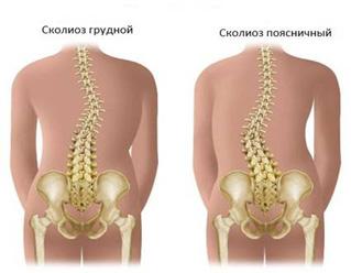 Сколиоз может развиваться после физической травмы позвоночника, перенесенной инфекции
