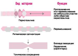 Симптомы атонии кишечника