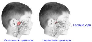 Симптомы аденоидов