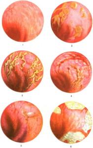 Лечение воспаления прямой кишки