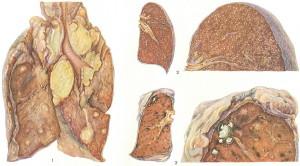 Что такое туберкулез и его признаки