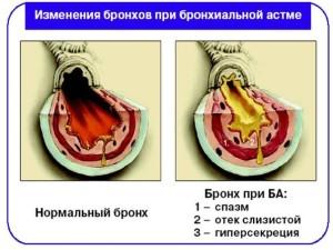 Почему появляется астма?