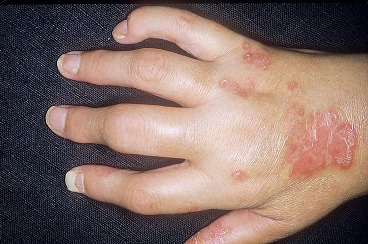 Аллергический артрит и полиартрит
