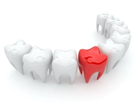 Болит зуб после лечения, что делать