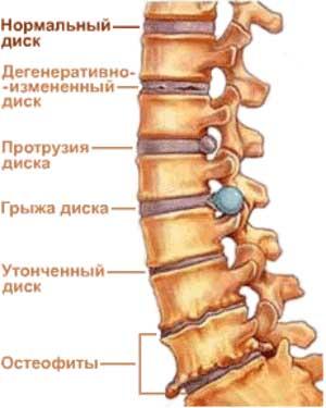 Лечение поясничного остеохондроза долгий и трудоемкий процесс