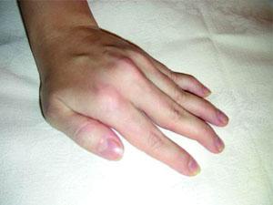 Болезни суставов рук — краткий обзоз провоцирующих факторов